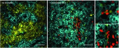 Breart et al Fig 3: Direct action of CTLs on individual tumor cells drives tumor regression